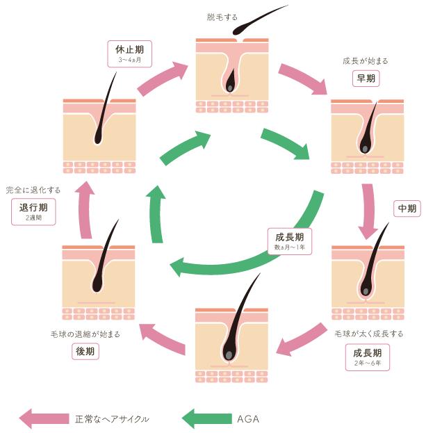 AGA(男性型脱毛症)治療について